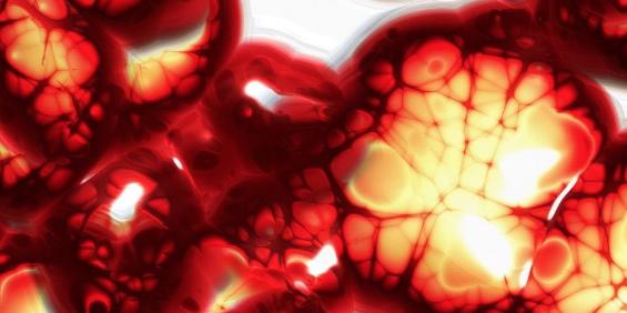 Uno de los objetivos de la bioimpresión será la medicina de reemplazo y la regeneración de tejidos/órganos, donde Regemat lleva trabajando con su equipo de ingenieros para la mejora del sector de la bioimpresión durante la última década, siendo uno de los pioneros y líderes a nivel mundial en el día de hoy.