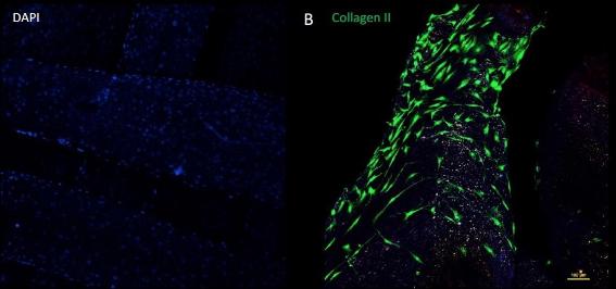Andamio bioimpreso cultivado con células humanas a través de la bioimpresora BIO de Regemat 3D.