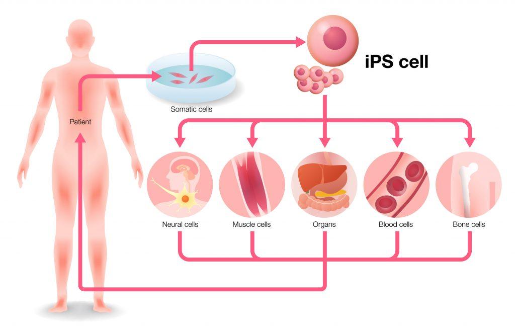 Células madre pluripotenciales inducidas (iPSCs) usando la bioimpresión de la tecnología de Regemat 3D